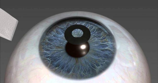 Офтальмологическое кольцо KAMRA Vision