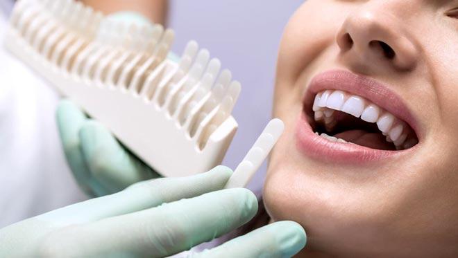 подбор эмали для зуба