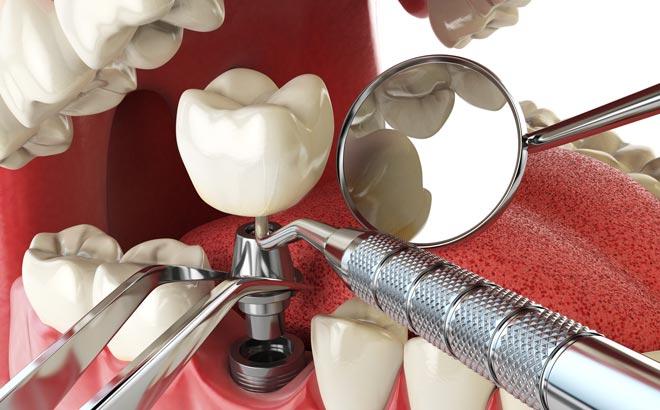 новые технологии имплантации в стоматологии